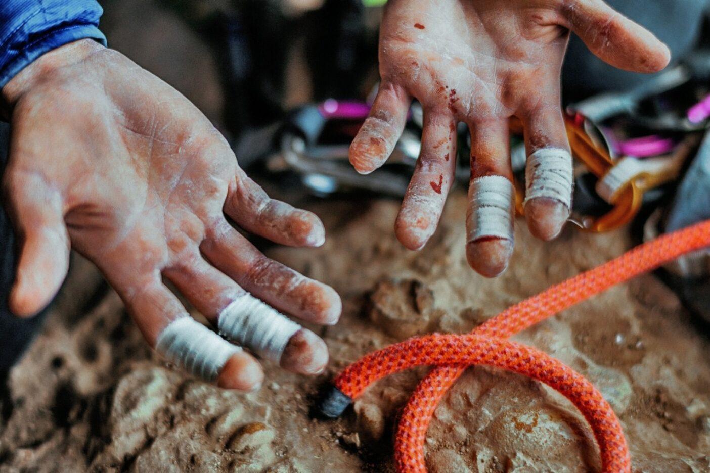 小さな鋭いホールドは何日も登ると災いをもたらす。最後のトライでは両手の人差し指のシワをテープで巻いた。Photo:Ken Etzel